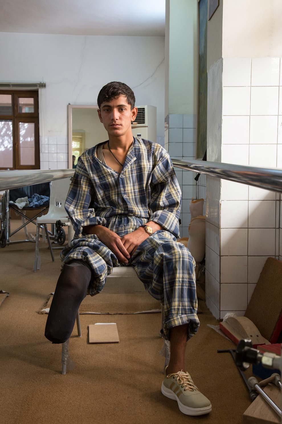 Un ragazzo senza una gamba, vittima di guerra