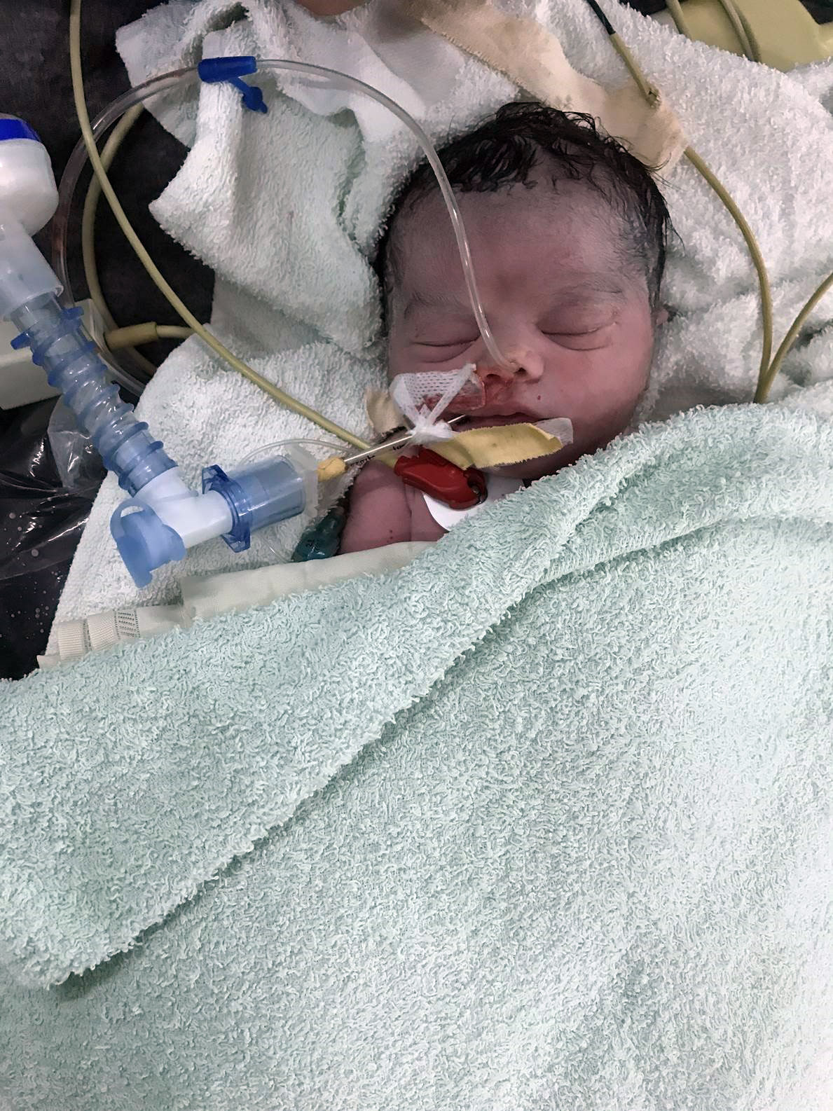 Sarah intubata nel Centro chirurgico di Lashkar-gah in Afghanistan