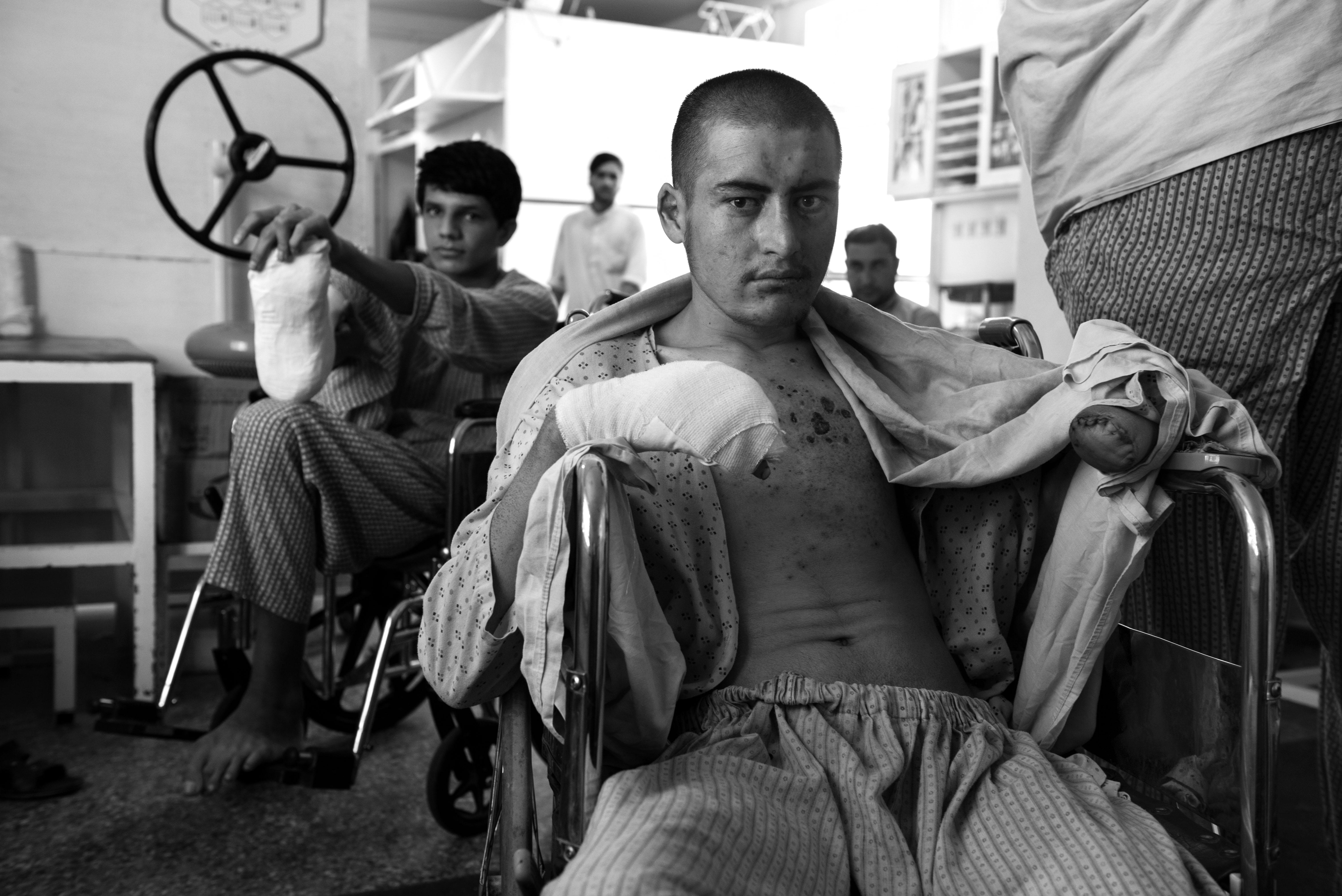 Nadim al centro chirurgico per vittime di guerra